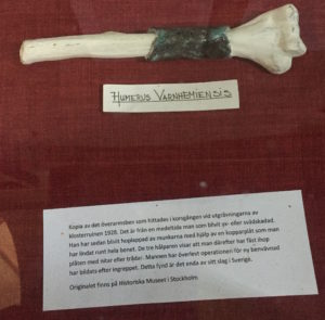 Bone with copper plate from Varnhem Monastery, 1260-1527