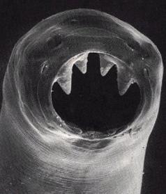 TWiP 22: Hookworm