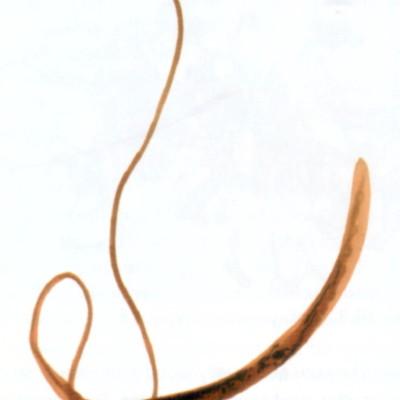 TWiP 20 – The whipworm Trichuris trichiura