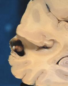 Brain cysticercus