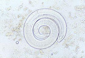 Trichinella pseudospiralis