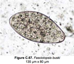 Fasciolopsis buski egg