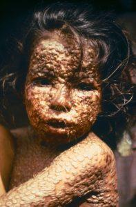 Child with smallpox